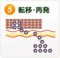 (5)転移・再発